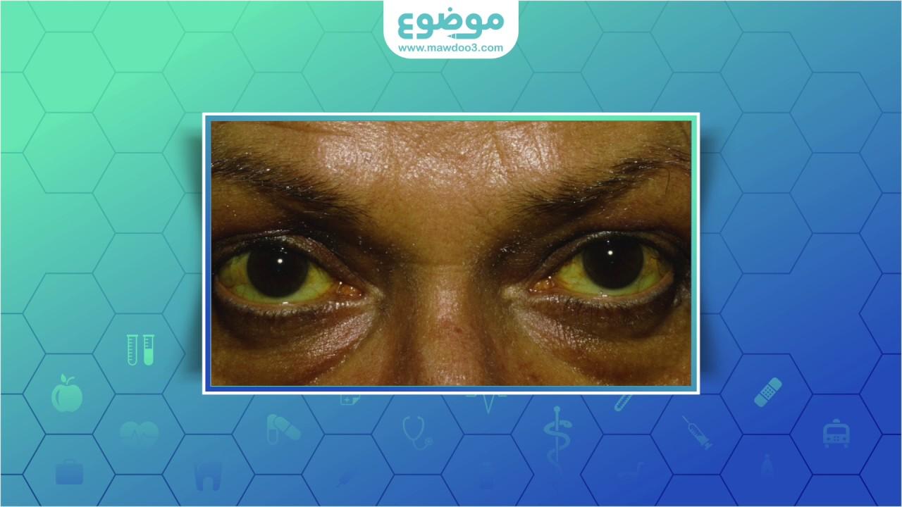 موضوع ما هي أسباب اصفرار العين؟
