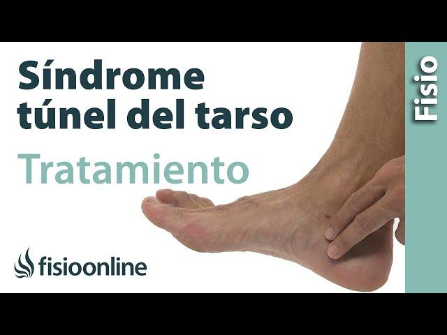 Síndrome del túnel del tarso. Qué es, Causas y tratamiento de ...
