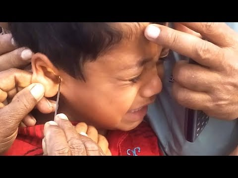 ►Ohhh...Sorry Baby II Painful Kids Ear Waxing