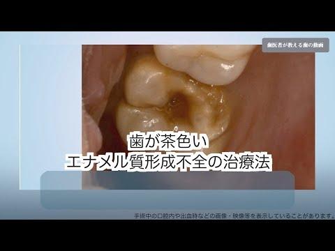 歯が茶色いエナメル質形成不全の治療法