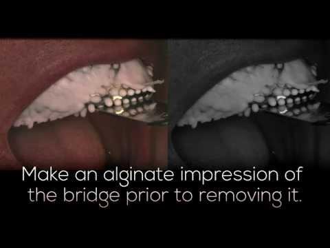 Temporary Dental Bridge