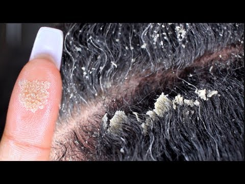 my-biggest-flakes-ever-part-2-|-scalp-scratching-and-picking-|-satisfying-dandruff-removal-asmr