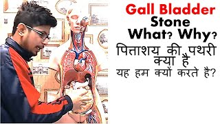 Gall bladder stone symptoms treatment