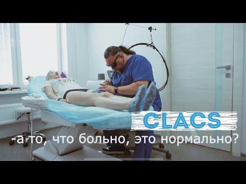 ClaCS Склеротерапия Удаление сосудов Откровенно про ноги