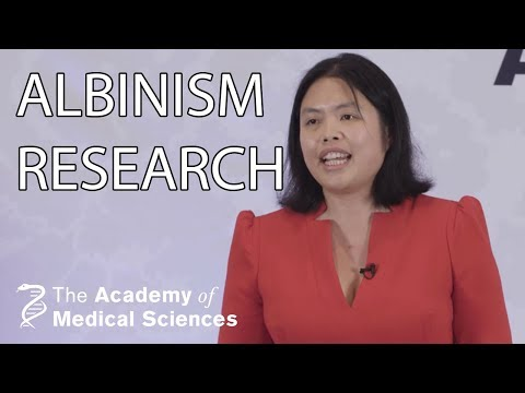 Improving Eye Development For Children With Albinism | Dr Helena Lee | AMSlive