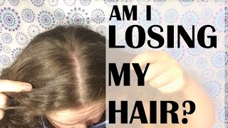 Going bald? Losing / thinning hair??