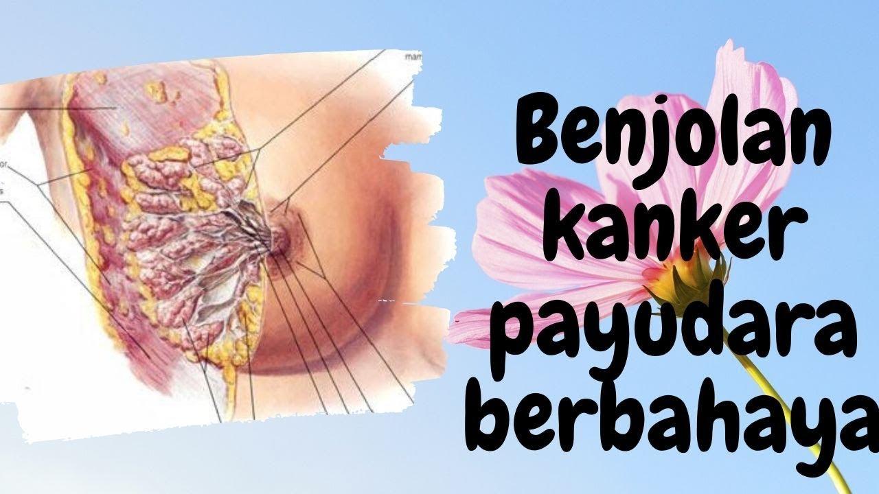 Benjolan kanker payudara berbahaya - YouTube