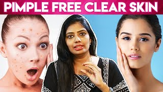 How To Remove Pimples Overnight   Acne Treatment, Home Remedies   Vinoth Bhama