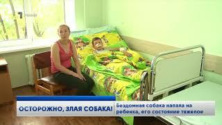 Мама ребенка, пострадавшего от укусов собаки в Комрате, рассказала, как все произошло