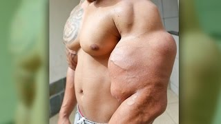 Man Tries to Become the Hulk, Almost Amputates Arms