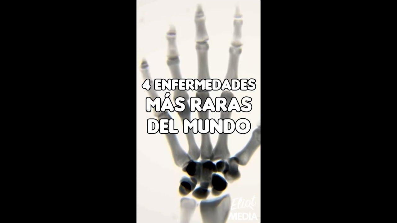 ESTAS SON LAS 4 ENFERMEDADES MÁS EXTRAÑAS DE TODO EL MUNDO #Shorts