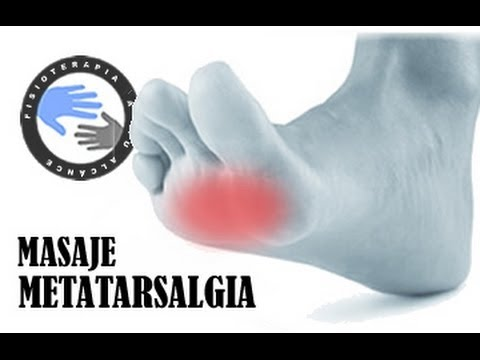 metatarsalgia,-tratamiento-mediante-masaje
