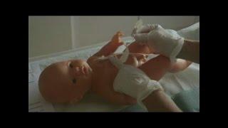 Medicazione del catetere venoso centrale a 2 vie nel bambino di età inferiore a 30 mesi