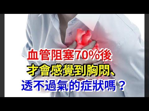 血管阻塞70%後,才會感覺到胸悶、透不過氣的症狀嗎?