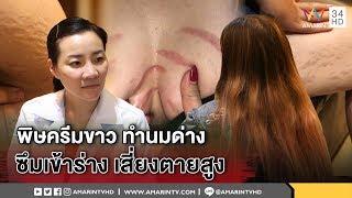 ทุบโต๊ะข่าว:สาวพึงระวังนมด่าง!เหยื่อแฉหลงซื้อครีมทางเน็ตหมอชี้เสี่ยงตายซึมเข้าร่างโรคเพียบ04/02/61