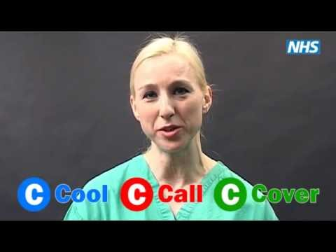 First Aid For Burns   Cool, Call, Cover