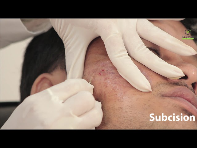 Subcision treatment for acne scars and wrinkles