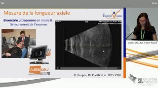 SFO 2019 - Intérêt de la Biométrie en mode B