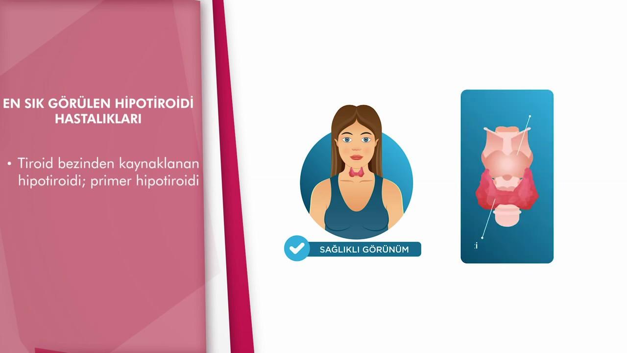 Műtét endokrin hipertóniában. Magas vérnyomás érszűkítő cseppekből