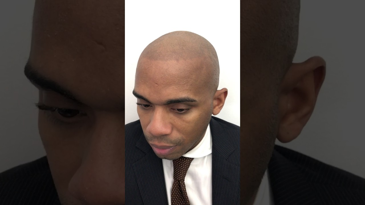 Bad Scalp Micropigmentation Hair Tattoo We Will Correct Fix It Youtube