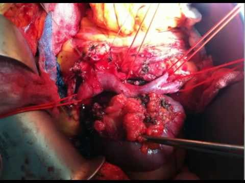 The Whipple Procedure with Portal Vein Resection