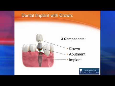 Dental Implant Options; A Basic But Thorough Explanation!