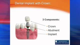 Dental Implant Options; A Basic But Thorough Explanation!