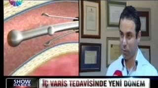 Prof  Dr  Ahmet AKGÜL   Show Tv Ana Haber İç Varis Tedavisinde Yeni Dönem Dünyada İlk Kez Türkiye'de