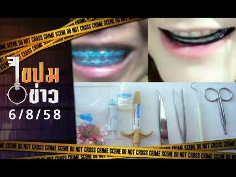 """ไขปมข่าว 6/8/58 : """"จัดฟันแฟชั่น"""" สวยอันตราย!"""