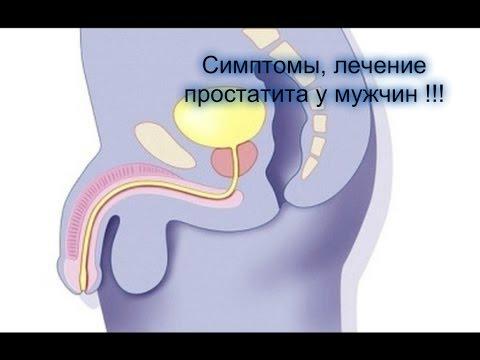 признаки простатита у мужчин симптомы