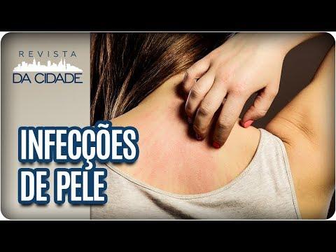 Doenças De Pele Do Verão: Causas, Sintomas E Tratamentos - Revista Da Cidade (14/02/18)