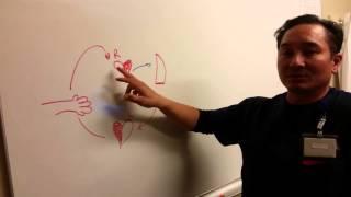 pulmonary artery catheter   alot
