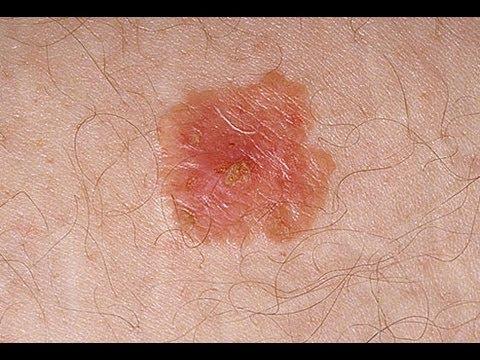Skin Cancer on the Rise in U.S. Kids