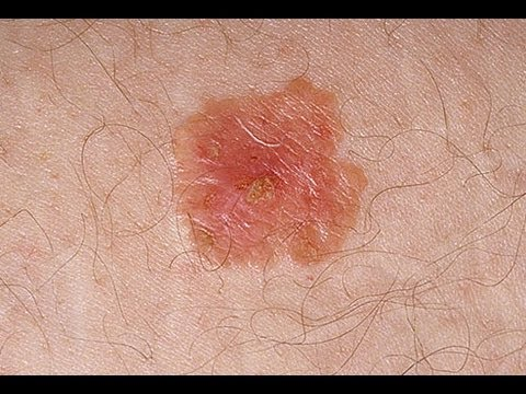 Skin Cancer on the Rise in U S  Kids