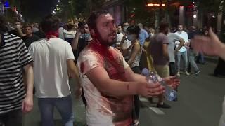 Нічні сутички із поліцією у Грузії: сльозогінний газ, травматична зброя та водомети