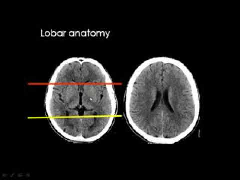 Radiology Course Dr mamdouh Mahfouz Brain imaging Normal anatomy CVS ...