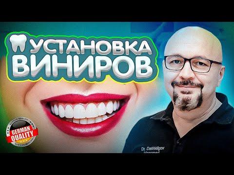 Виниры на зубы: фото до и после, керамические и