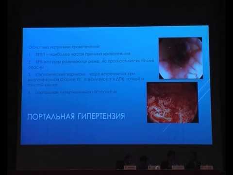 32 Волерт Т А    Желудочно кишечные кровотечения у детей
