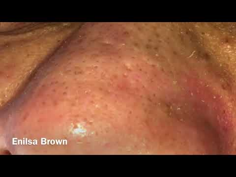 Blackheads Extractions and Acne Treatment on Daryl