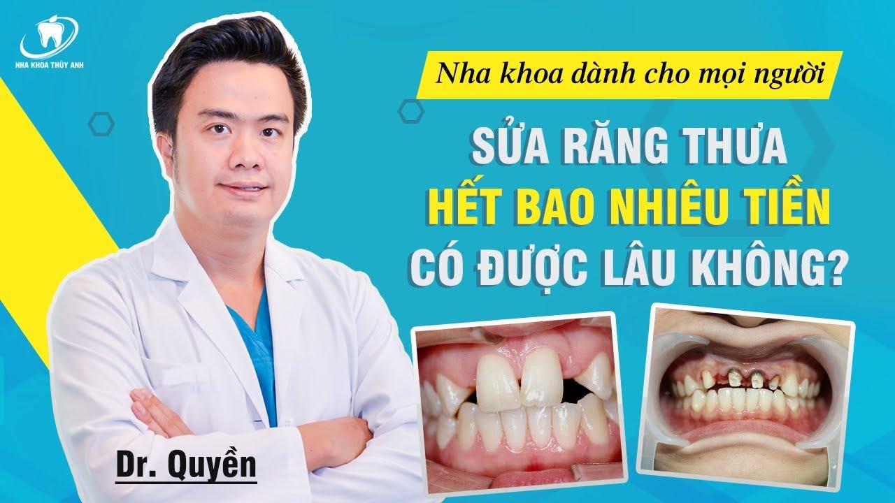 Thẩm mỹ răng thưa bao nhiêu tiền, có được vĩnh viễn không?
