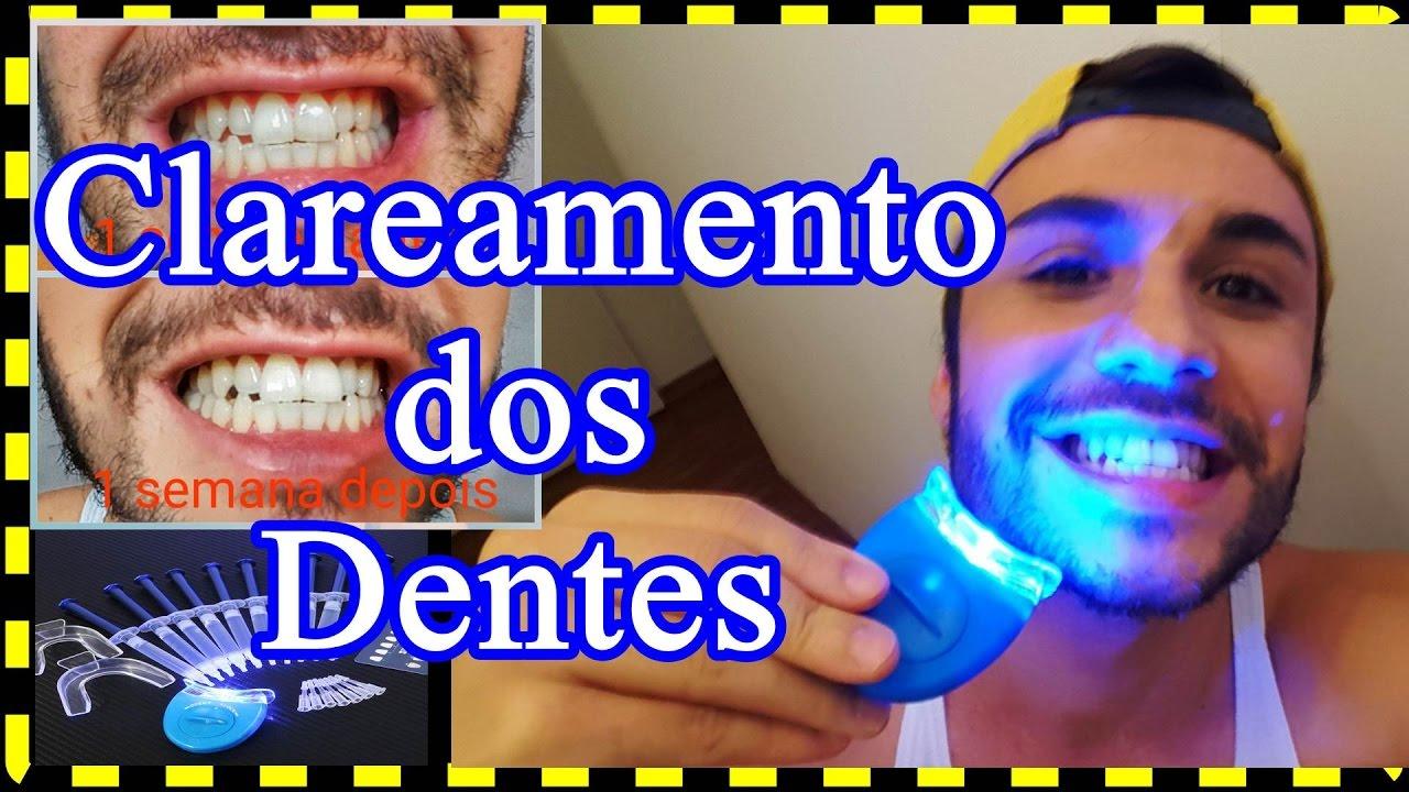 Vemcomigo Clareamento Dental De Verdade Youtube