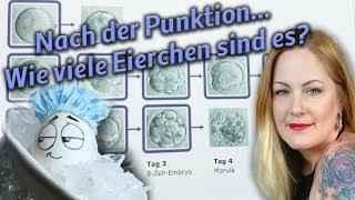 #7 ICSI - PUNKTION VORBEI - Follikel noch da ? - Wie viele Eizellen? - Akupunktur ? - OAT II Syndrom
