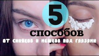 видео Как избавиться от мешков под глазами в домашних условиях? Быстро и навсегда