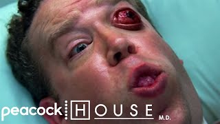 Video Eye Pops Out | House M.D. download MP3, 3GP, MP4, WEBM, AVI, FLV Agustus 2017