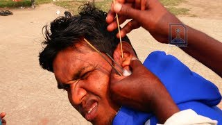 Roadside Ear Cleaner in India II Is it safe way to remove Ear Wax ? ? ?