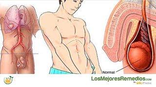 De varicocele derecho cáncer testículo