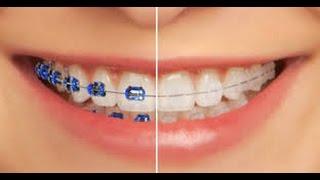 Cara  Mengenal 2 Jenis Kawat Gigi