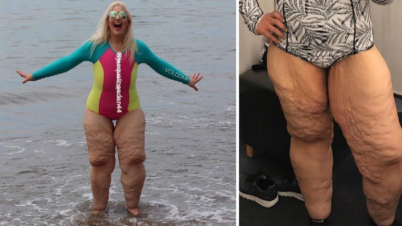 سخر المتنمرين من ساقيها ، ولكن الصورة التي التقطتها اخرستهم جميعا!!