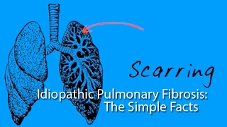 Idiopathic Pulmonary Fibrosis: The Simple Facts