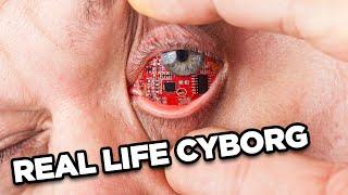 10 Real Life Cyborgs